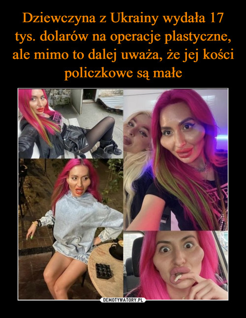 Dziewczyna z Ukrainy wydała 17 tys. dolarów na operacje plastyczne, ale mimo to dalej uważa, że jej kości policzkowe są małe