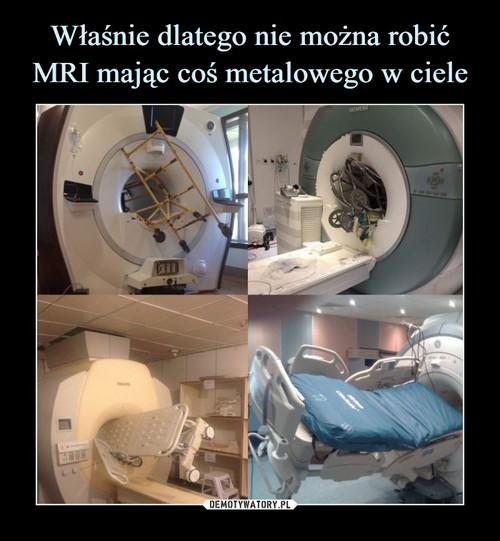 Właśnie dlatego nie można robić MRI mając coś metalowego w ciele